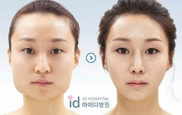 Cirugía plástica en Corea (23)