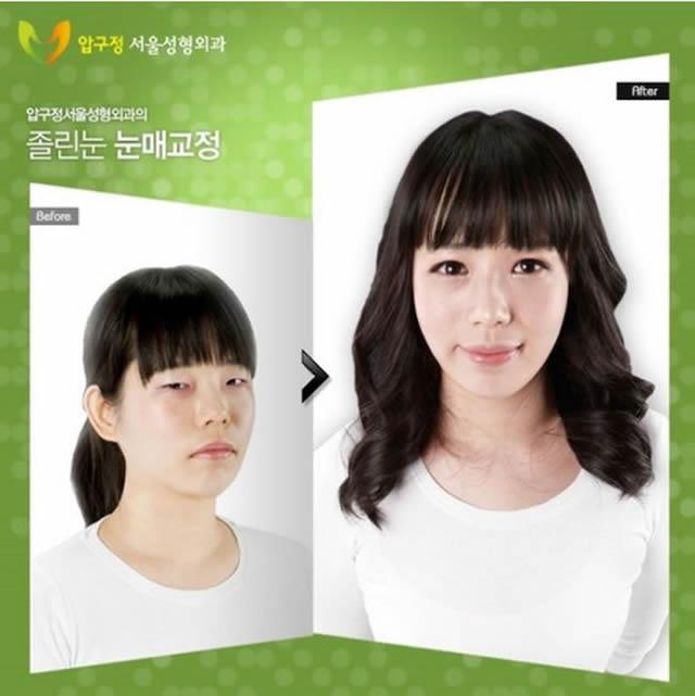 Cirugía plástica en Corea (31)
