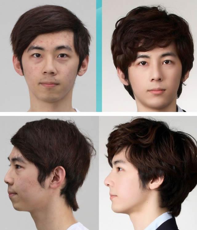 Cirugía plástica en Corea (30)