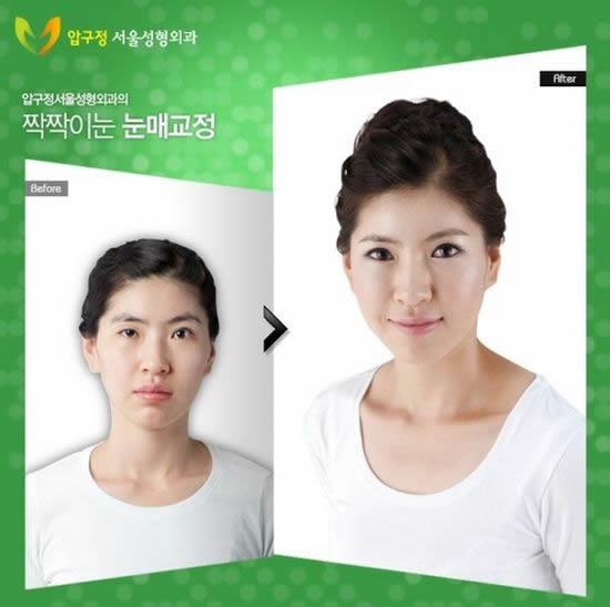 Cirugía plástica en Corea (29)