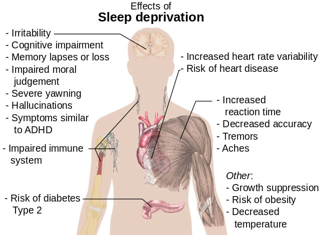 efectos privacion sueño