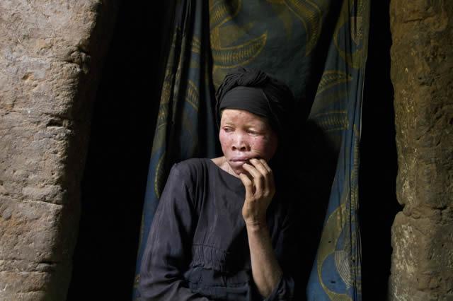 Persecución Caza Albinos Tanzania (16)