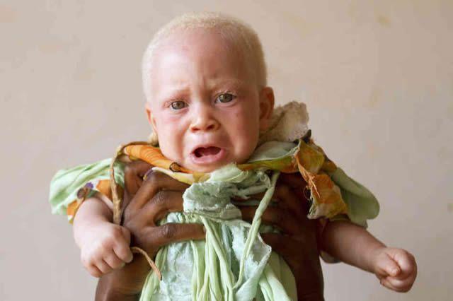 Persecución Caza Albinos Tanzania (14)