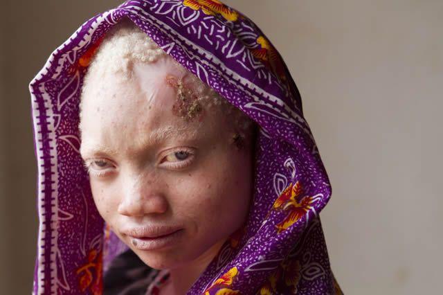 Persecución Caza Albinos Tanzania (12)