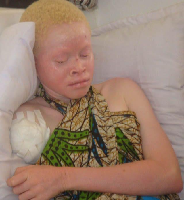 Remarkable, rather Albino black girl sex