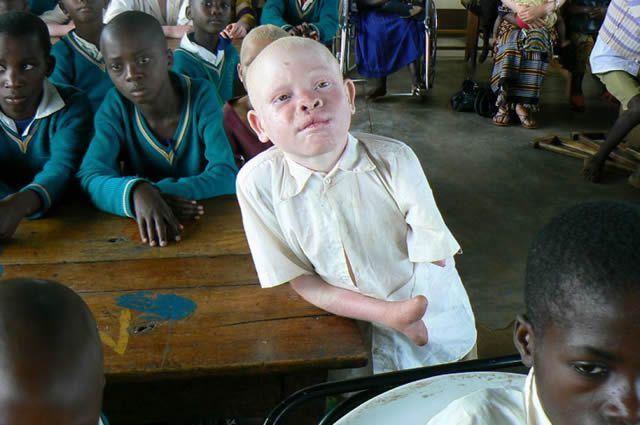 Persecución Caza Albinos Tanzania (6)