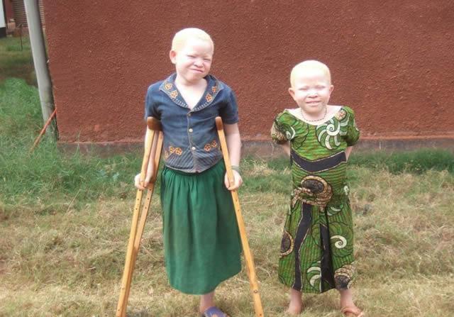 Persecución Caza Albinos Tanzania (5)