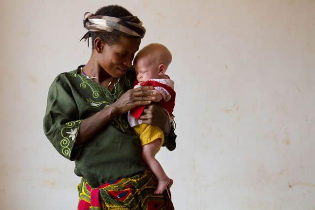 Persecución Caza Albinos Tanzania (1)