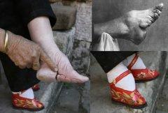 «Pies de loto», la extraña tradición de vendar los pies
