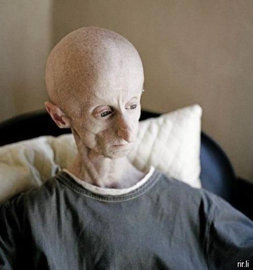 Leon Botha Progeria