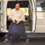 Hombre con escroto de 60 kg – linfedema escrotal