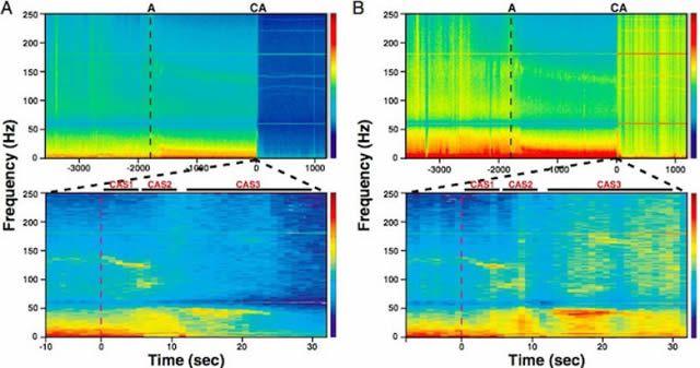 Neurólogos descubren posibles signos de conciencia post-mortem en ratas