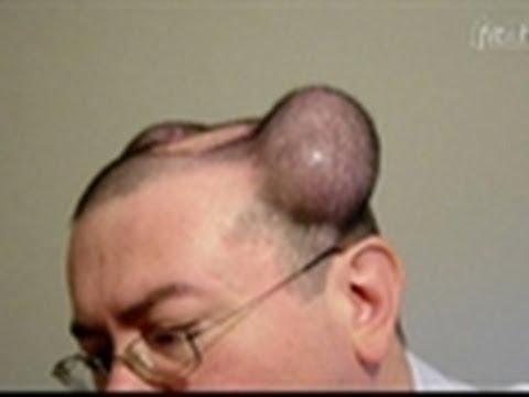 Las novedades de la alopecia