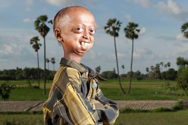 Ali Hussain Progeria (1)