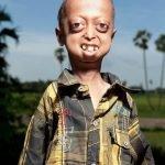 Ali Hussain, el niño con cuerpo de anciano