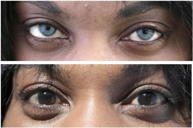 implante iris artificial, cambiar color de ojos (7)