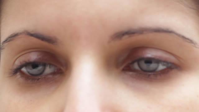implante iris artificial, cambiar color de ojos (5)