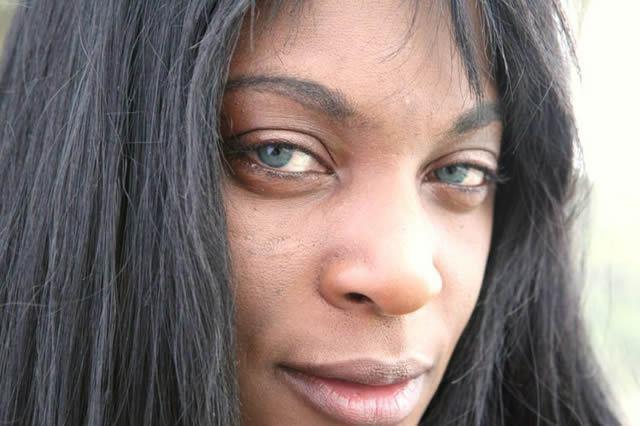 implante iris artificial, cambiar color de ojos (4)