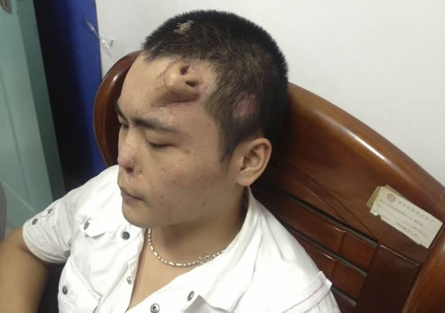 Científicos chinos cultivan nariz en frente de paciente (2)
