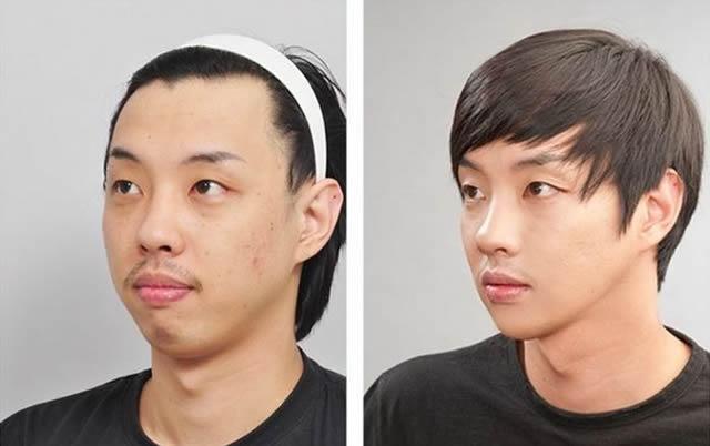 Cirugía Plástica en Corea Antes y Despues 2 (2)