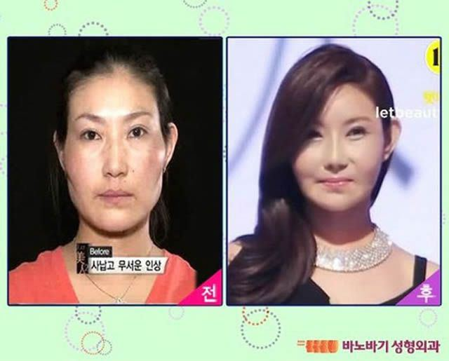 Cirugía Plástica en Corea Antes y Despues 2 (1)