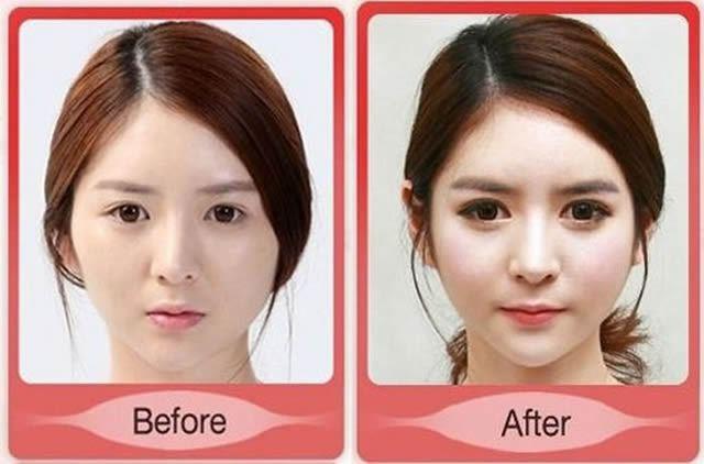Cirugía Plástica en Corea Antes y Despues 2 (60)