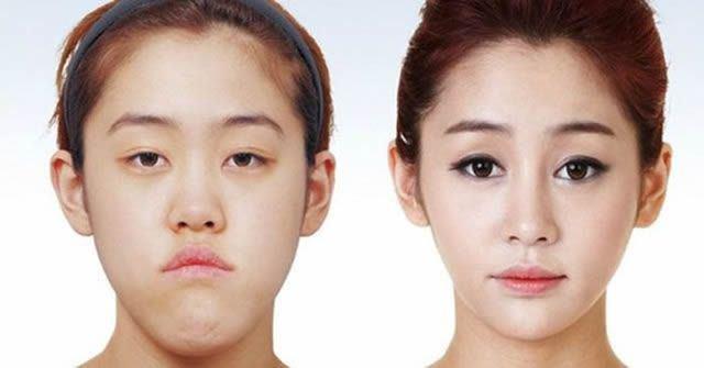 Cirugía Plástica en Corea Antes y Despues 2 (59)