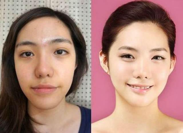 Cirugía Plástica en Corea Antes y Despues 2 (58)