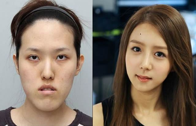 Cirugía Plástica en Corea Antes y Despues 2 (57)
