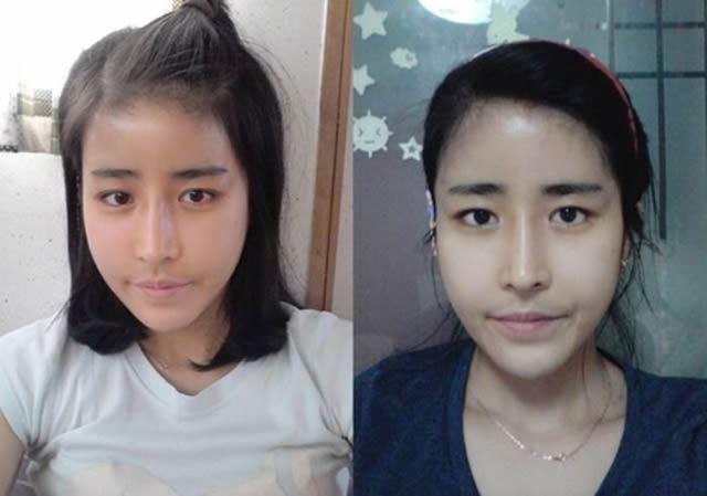 Cirugía Plástica en Corea Antes y Despues 2 (56)