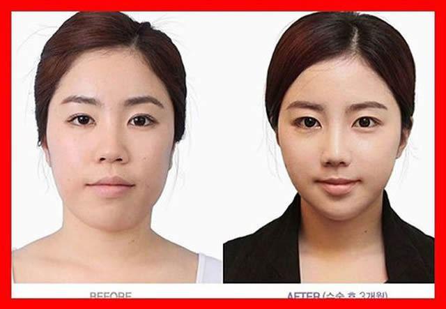 Cirugía Plástica en Corea Antes y Despues 2 (55)