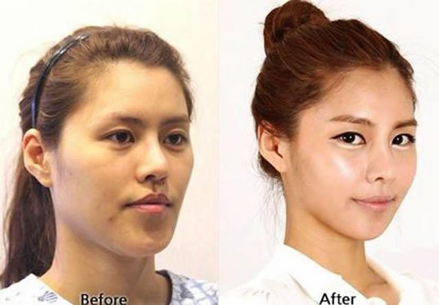 Cirugía Plástica en Corea Antes y Despues 2 (54)