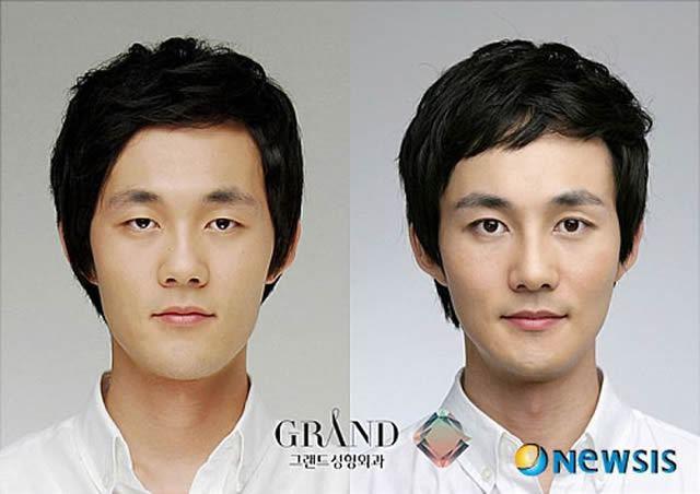 Cirugía Plástica en Corea Antes y Despues 2 (53)