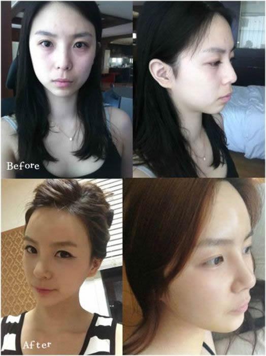 Cirugía Plástica en Corea Antes y Despues 2 (52)