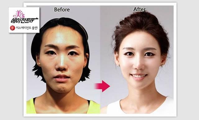 Cirugía Plástica en Corea Antes y Despues 2 (50)