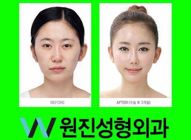 Cirugía Plástica en Corea Antes y Despues 2 (49)