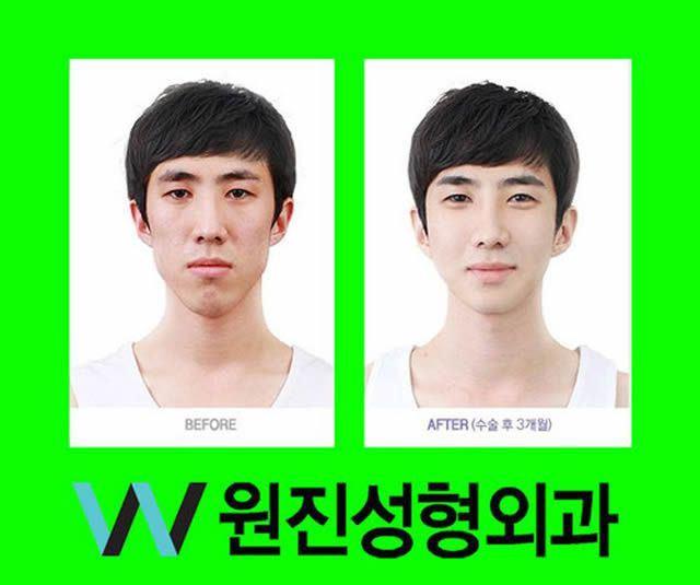 Cirugía Plástica en Corea Antes y Despues 2 (48)