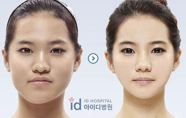 Cirugía Plástica en Corea Antes y Despues 2 (47)