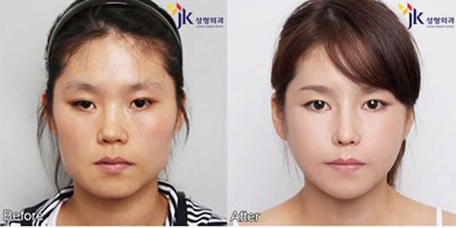 Cirugía Plástica en Corea Antes y Despues 2 (46)