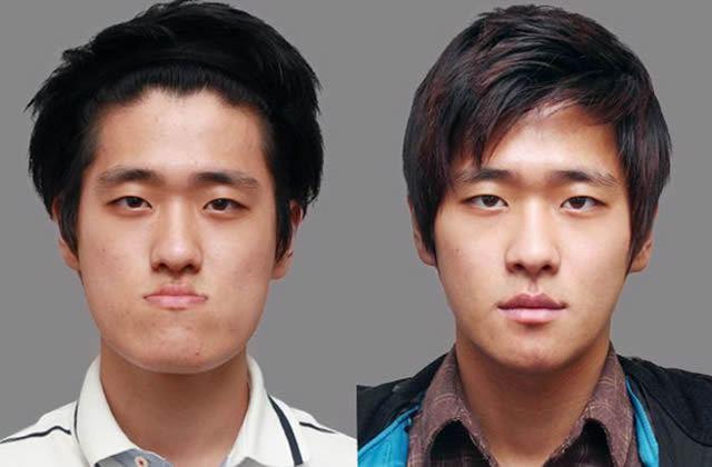 Cirugía Plástica en Corea Antes y Despues 2 (45)