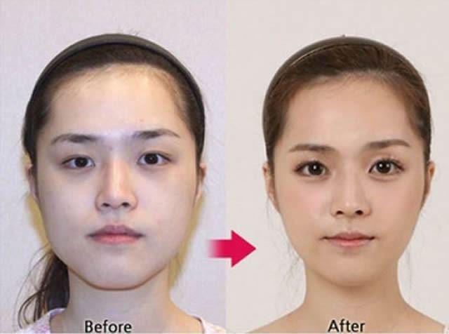 Cirugía Plástica en Corea Antes y Despues 2 (44)
