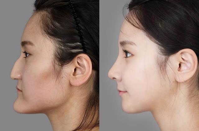 Cirugía Plástica en Corea Antes y Despues 2 (43)