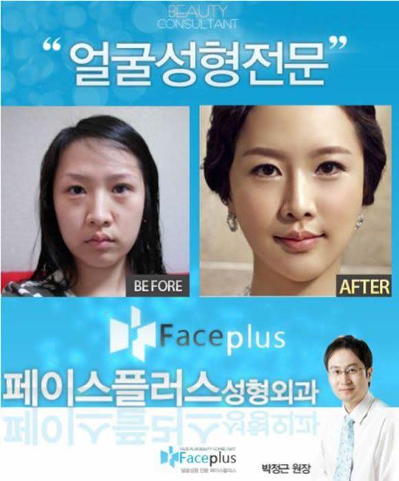 Cirugía Plástica en Corea Antes y Despues 2 (42)
