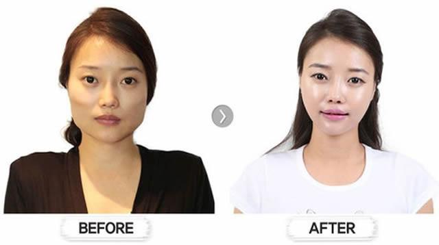 Cirugía Plástica en Corea Antes y Despues 2 (41)