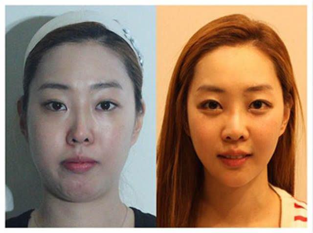 Cirugía Plástica en Corea Antes y Despues 2 (40)