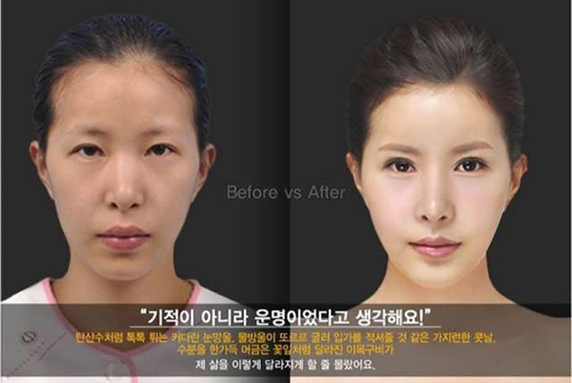 Cirugía Plástica en Corea Antes y Despues 2 (39)