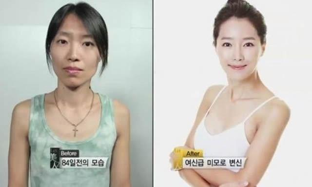Cirugía Plástica en Corea Antes y Despues 2 (38)