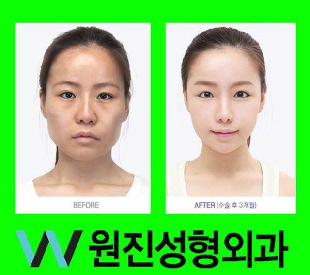 Cirugía Plástica en Corea Antes y Despues 2 (37)
