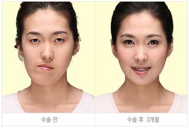 Cirugía Plástica en Corea Antes y Despues 2 (36)
