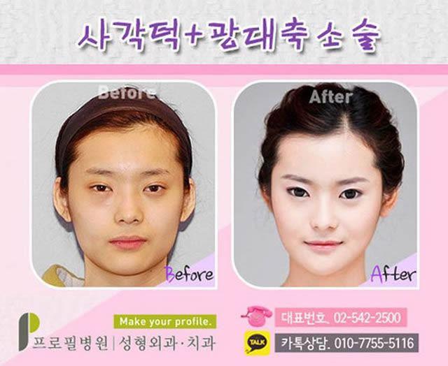 Cirugía Plástica en Corea Antes y Despues 2 (35)